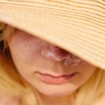 頭皮の日焼けケア
