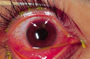 11 Eye diseases