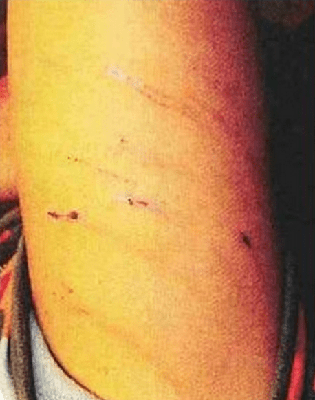 Adrian Peterson Spanks Son with Switch Felony Child Injury