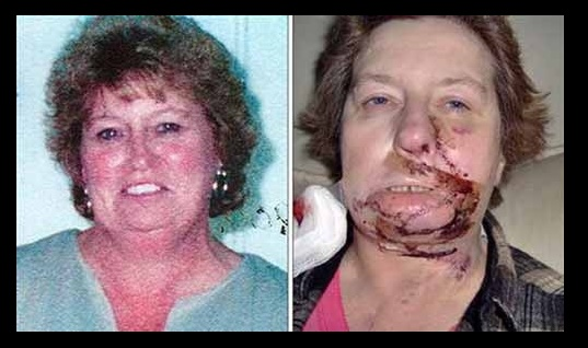 Virginia Woman Has Multiple Burns Over Face and Chest After Undergoing Thyroid Surgery