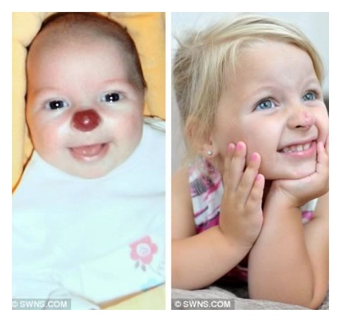 Two Year Old Born With a Clown Nose