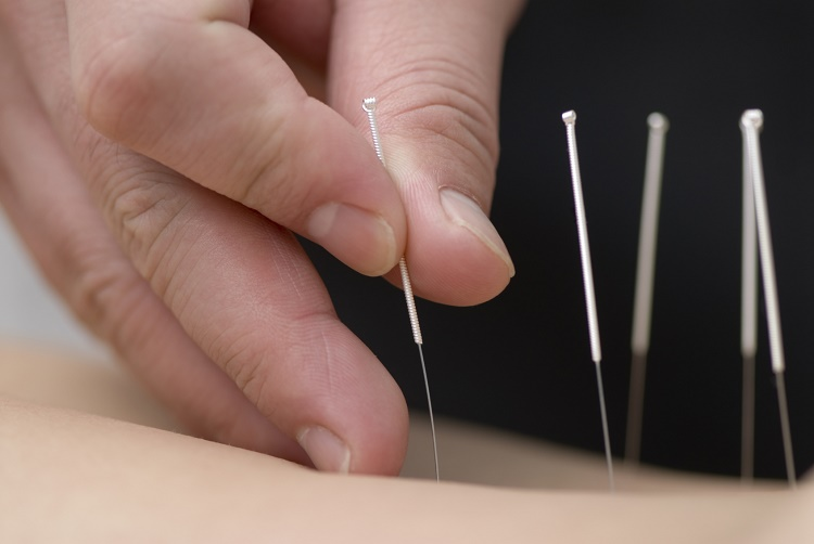 Acupuncture enters the world of Hollywood
