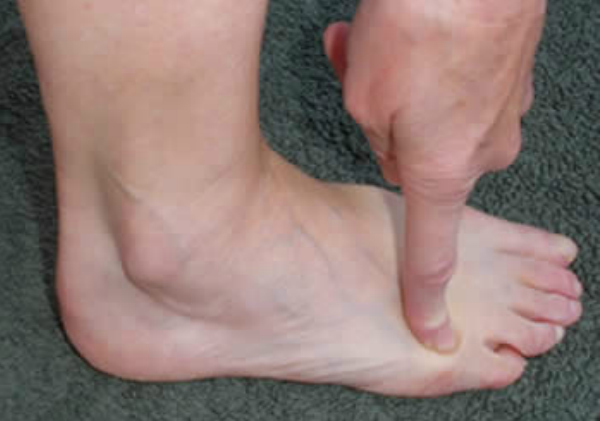 People with a tiny little toe