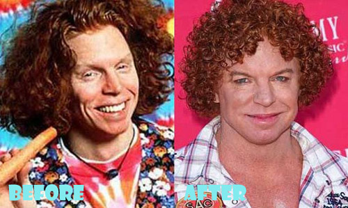 "Scott ""Carrot Top"" Thompson"