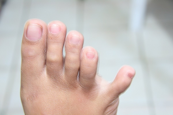 The little toe has the ability to form an angle