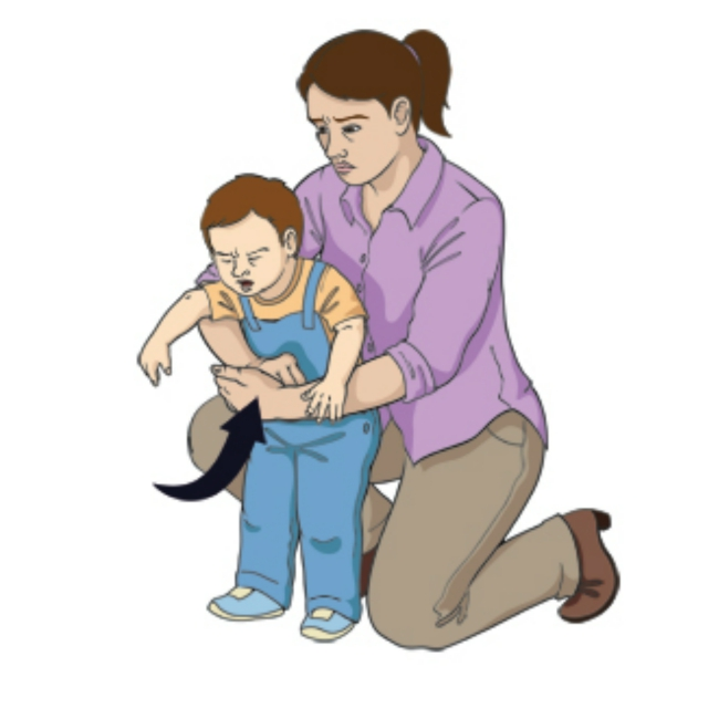 Abdominal thrust for a child above the age of one