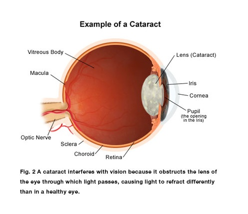 Cataract is related to ageing, not disease