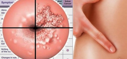 Cervical cancer signs