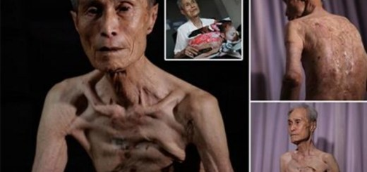 86 year old Atomic bomb survivor shows his scars