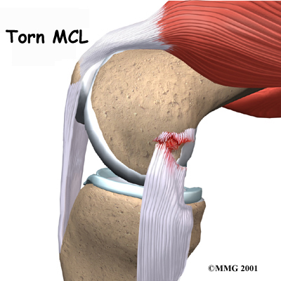Tendon tear or Injury