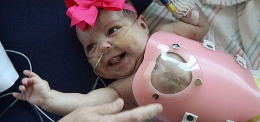 Read to know why this miracle baby needed armour in order to live