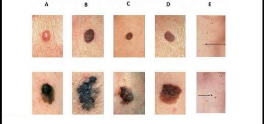 Knowing the meaning of each kind of mole can definitely save your life one day