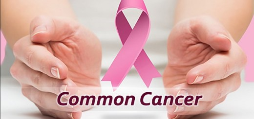 5 Most common types of cancer and their symptoms