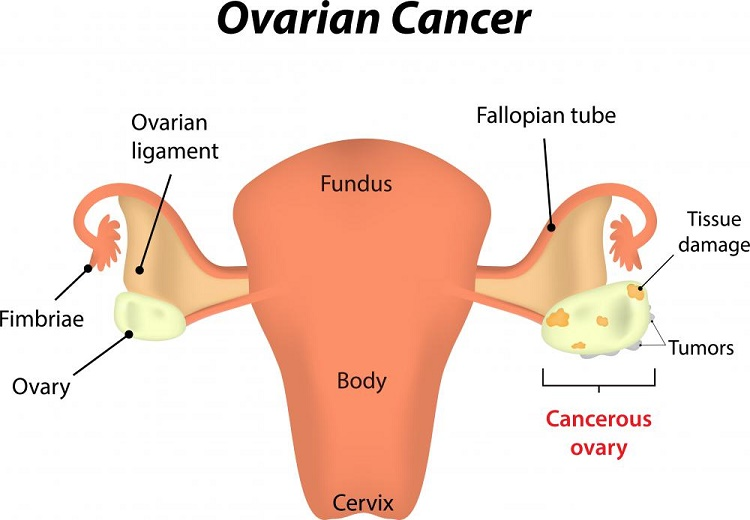 What are the types and symptoms of ovarian cancer?