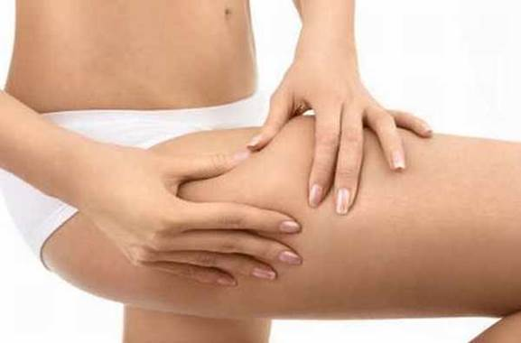 cellulite common in men and women
