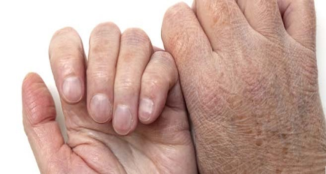 Dry or cracked skin on hands