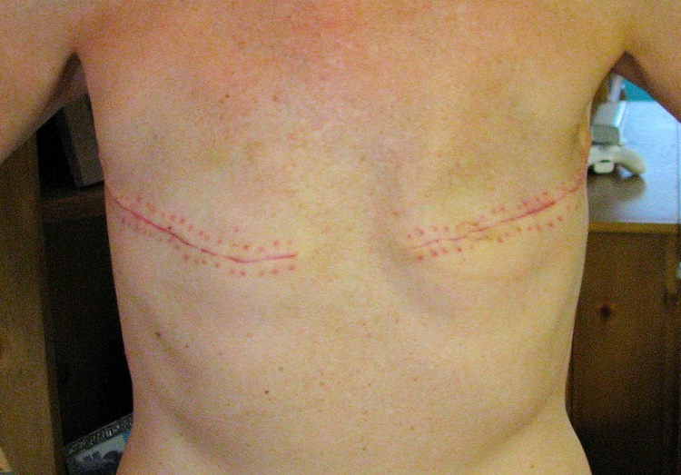 Is breast augmentation the only solution to a masectomy