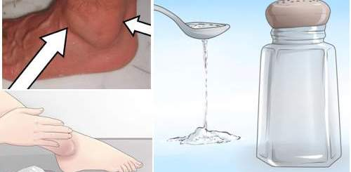 Simple and effective ways to treat swollen feet and ankles