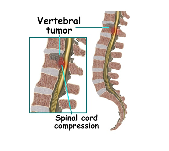 A comprehensive guide to spinal cord tumors and everything ...