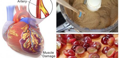 The diet plan of heart attack patients must be revamped to include these foods
