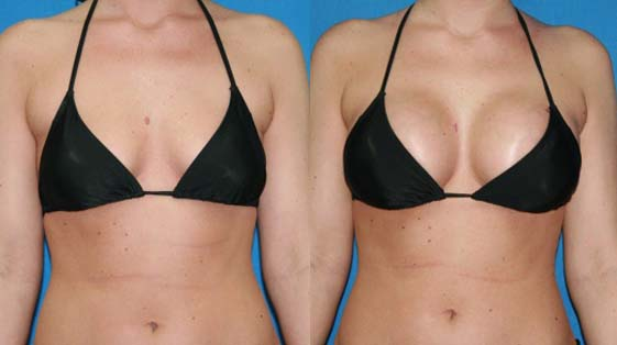 The final shape and size of a pair of fake breasts is upto the surgeon