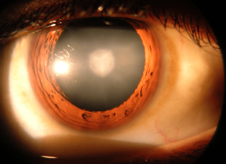 Cataracts Reflect Aging, Not Disease