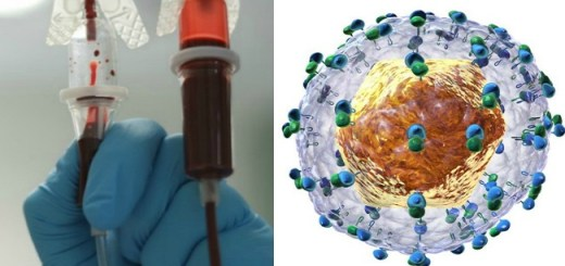 Researchers find a new virus linked to Hepatitis C, which is certainly not good!