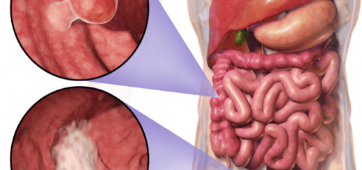 The relation between obesity and colorectal cancer