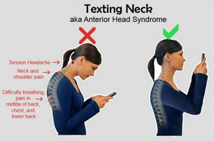 "The research on this ""Text-neck"""