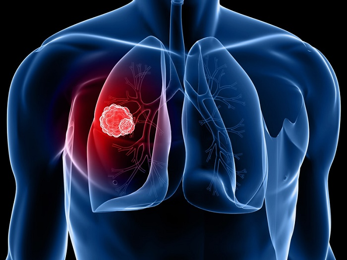 What The Study Says About Pneumonia And Lung Cancer?