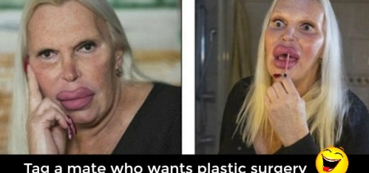 Woman spends more than $76,000 on plastic surgeries to achieve the perfect body!