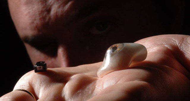 An amazing account of a filmmaker who replaced his eyeball with a camera!