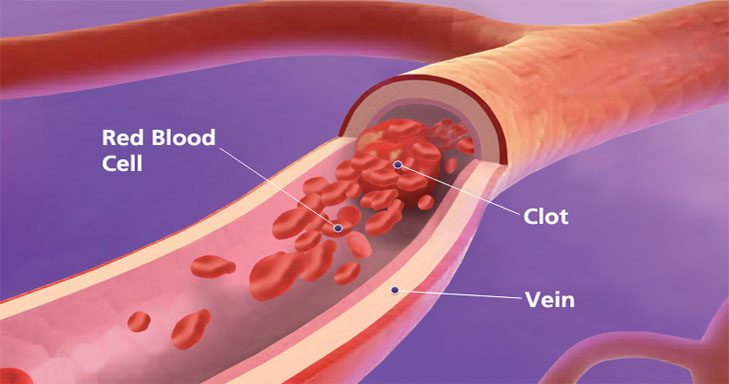 Are you at a risk of developing blood clots which can be dangerous?