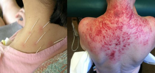 Beware!! Acupuncture process can also cause bacterial infection, but only in rare cases!