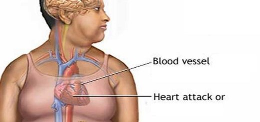 Shocking!! Obese children as young as 8 years old are having heart related problems!