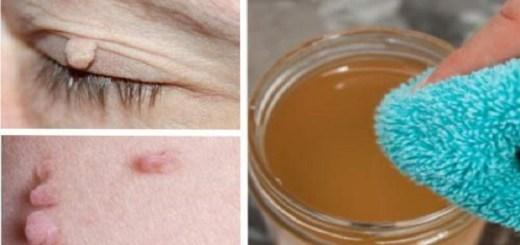 These effective natural techniques will surely help in the removal of skin warts or fibroma