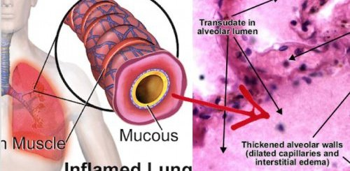 This is how you can treat lung congestion with natural remedies