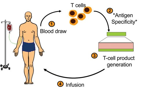 Unprecedented discovery of T-cell therapy for cure of blood cancer