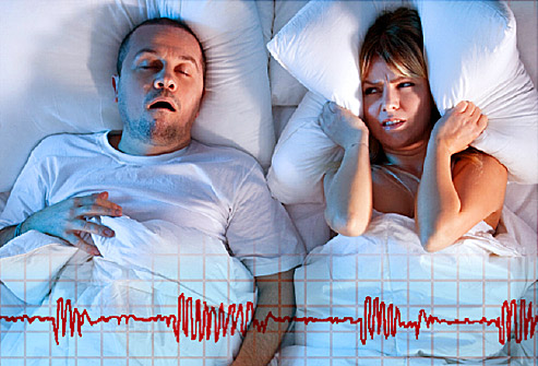 What are the three types of sleep apnea commonly found among people?