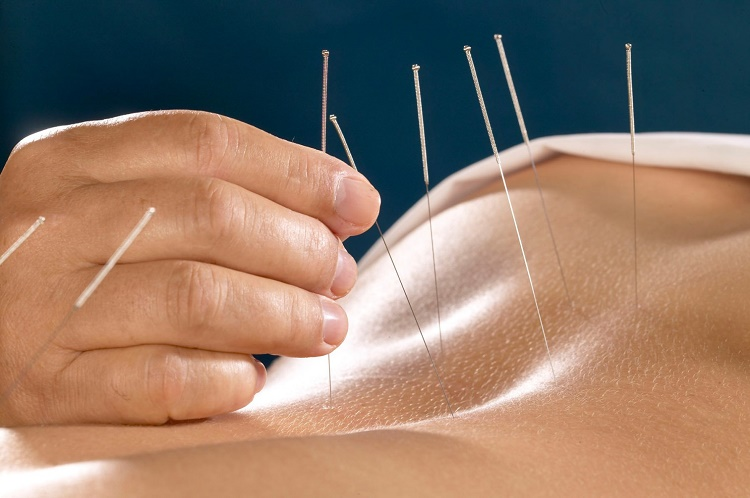 acupuncture in Australia