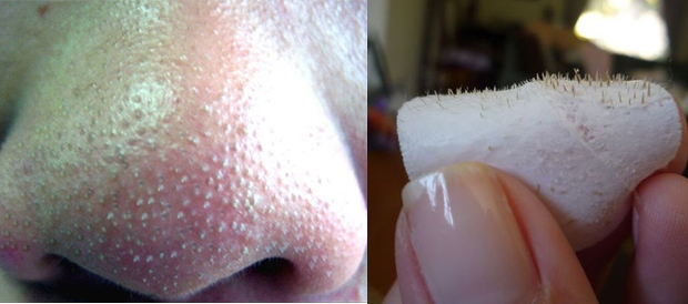 Simple tricks to remove your blackheads