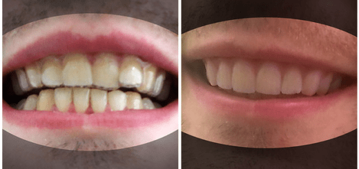 This College Student constructed his own braces for $60 and he now has a fantastic smile