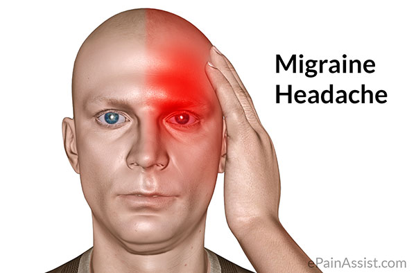 Headache and Migraines