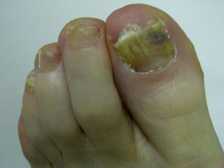 What are the symptoms of toenail fungus?
