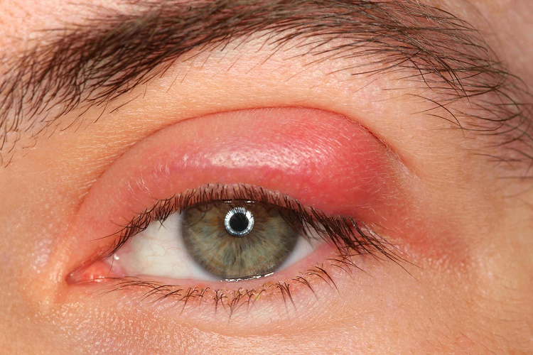 What do you know about Chalazion cysts?
