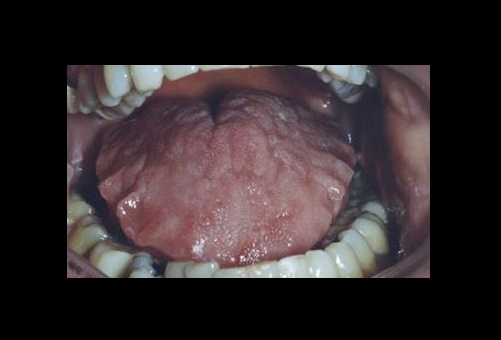 What is scalloped tongue and what are its symptoms?