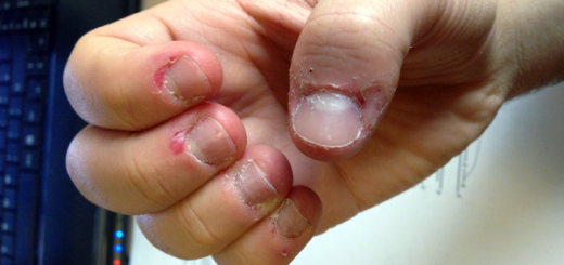 Why you need to stop right now if you pick the skin around your nails