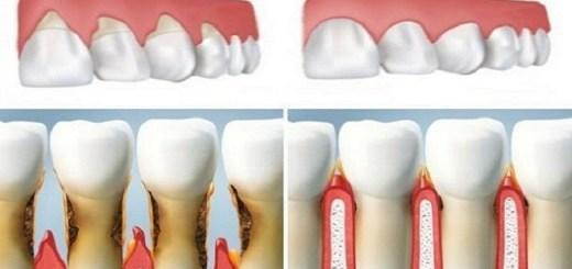 Grow back your receding gums right by using these 5 natural ingredients