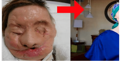 She was attacked by a chimpanzee. This is how she looks after a face transplant