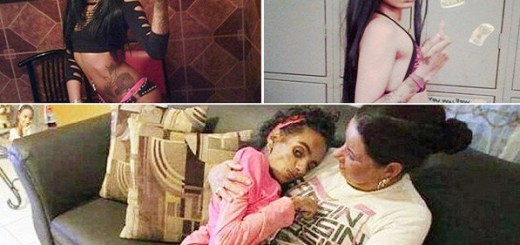 This young mother was left brain damaged after a botched cosmetic surgery